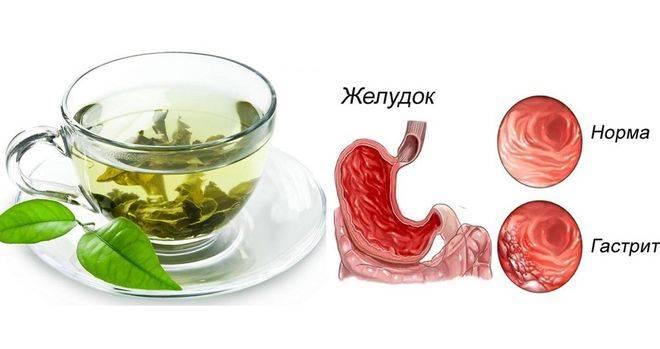 Что можно пить при язве желудка: разрешенные напитки, польза травяных чаев