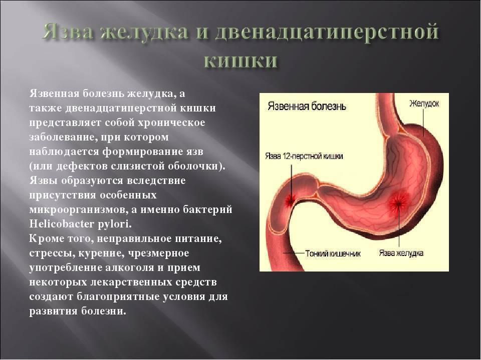 Употребление напитков при язве желудка. что можно пить: соки, компот, чай, кофе, минеральную воду?