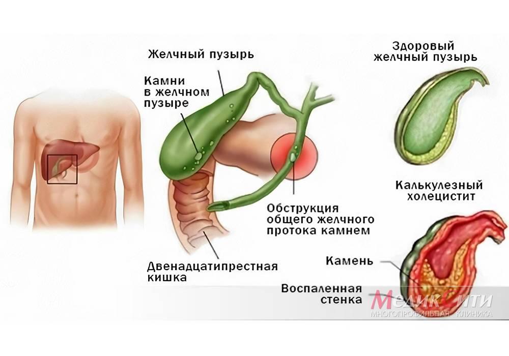 Лечебная диета при воспалении желчного пузыря