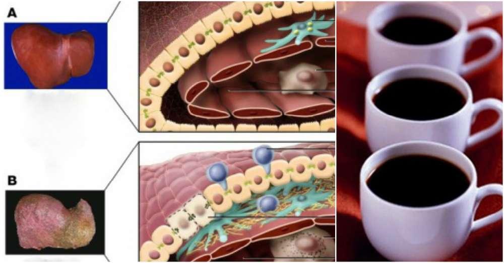 Влияние кофе на печень: польза и вред, можно ли пить при болезнях