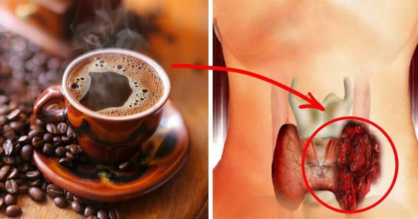 Можно ли пить кофе при геморрое - с молоком можно или нет?