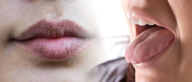 Сухость во рту ночью, по утрам и днем: причины, на какую болезнь указывает и как избавиться