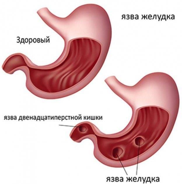 Что можно есть при язве желудка: подробный список разрешённых и запрещённых продуктов