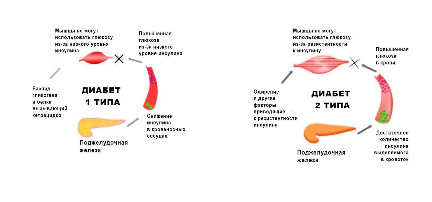 Как снизить сахар в рационе | новости медицины