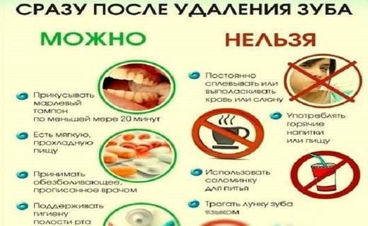 Сколько времени нельзя пить или есть после установки пломбы на зуб