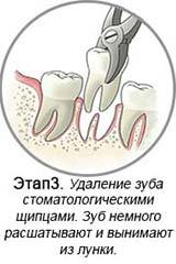 После удаления зуба можно ли пить молоко