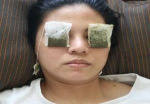 Как промывать глаза чаем (зеленым или черным), можно ли делать это новорожденному