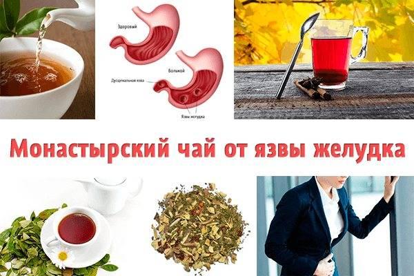 Что можно пить при гастрите желудка: кофе, чай, какао и минеральная вода