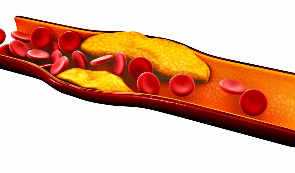 Диета при повышенном холестерине: таблица, меню на неделю