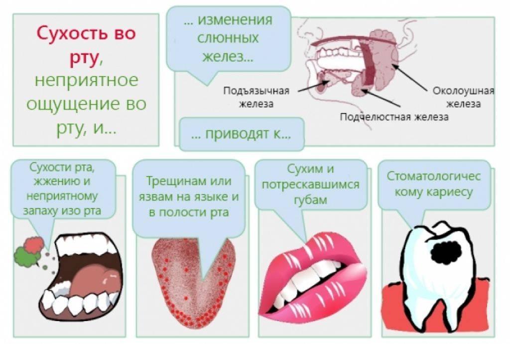 Как предотвратить сухость во рту - wikihow