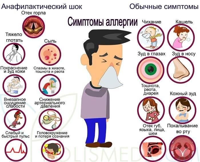 Причины и симптомы аллергии на кофе