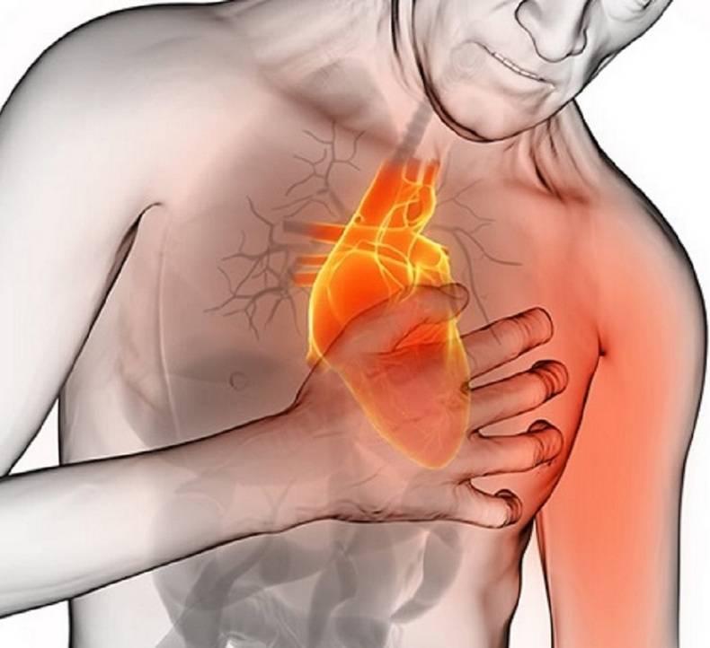 Выпил кофе болит сердце что делать