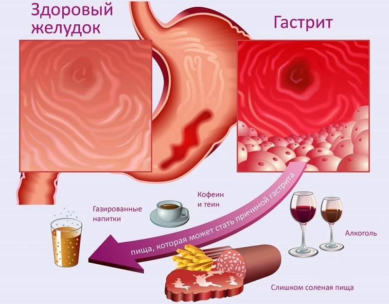 Может ли от кофе болеть желудок – о чем это говорит. заболевания жкт, при которых нельзя употреблять напиток