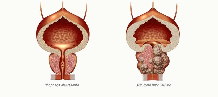 Правильное питание при аденоме простаты у мужчин: что можно и чего нельзя?