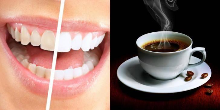 Можно ли после отбеливания зубов пить кофе с молоком?   здоровье зубов