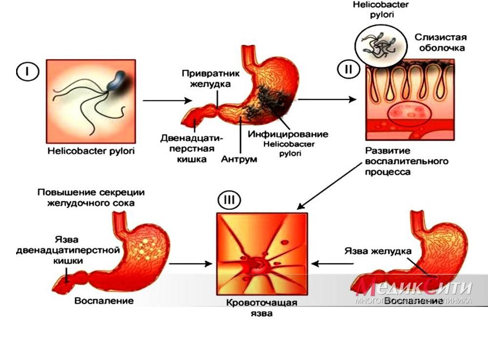 Почему после кофе крутит живот?   в желудке как кофе воздействует на работу желудка?   в желудке