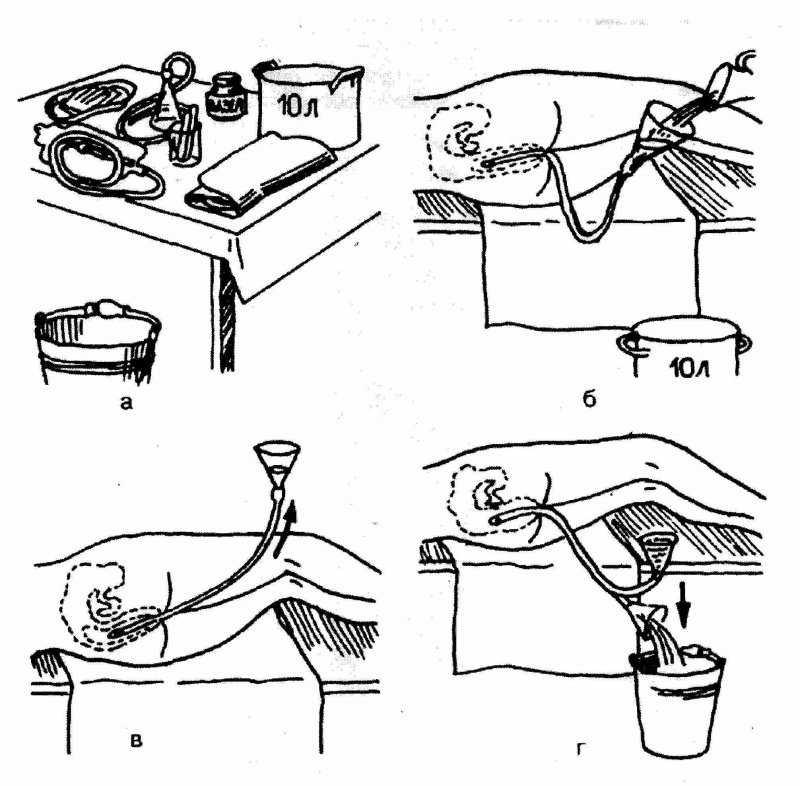 Кофейные клизмы – чудо детоксикации и метод лечения
