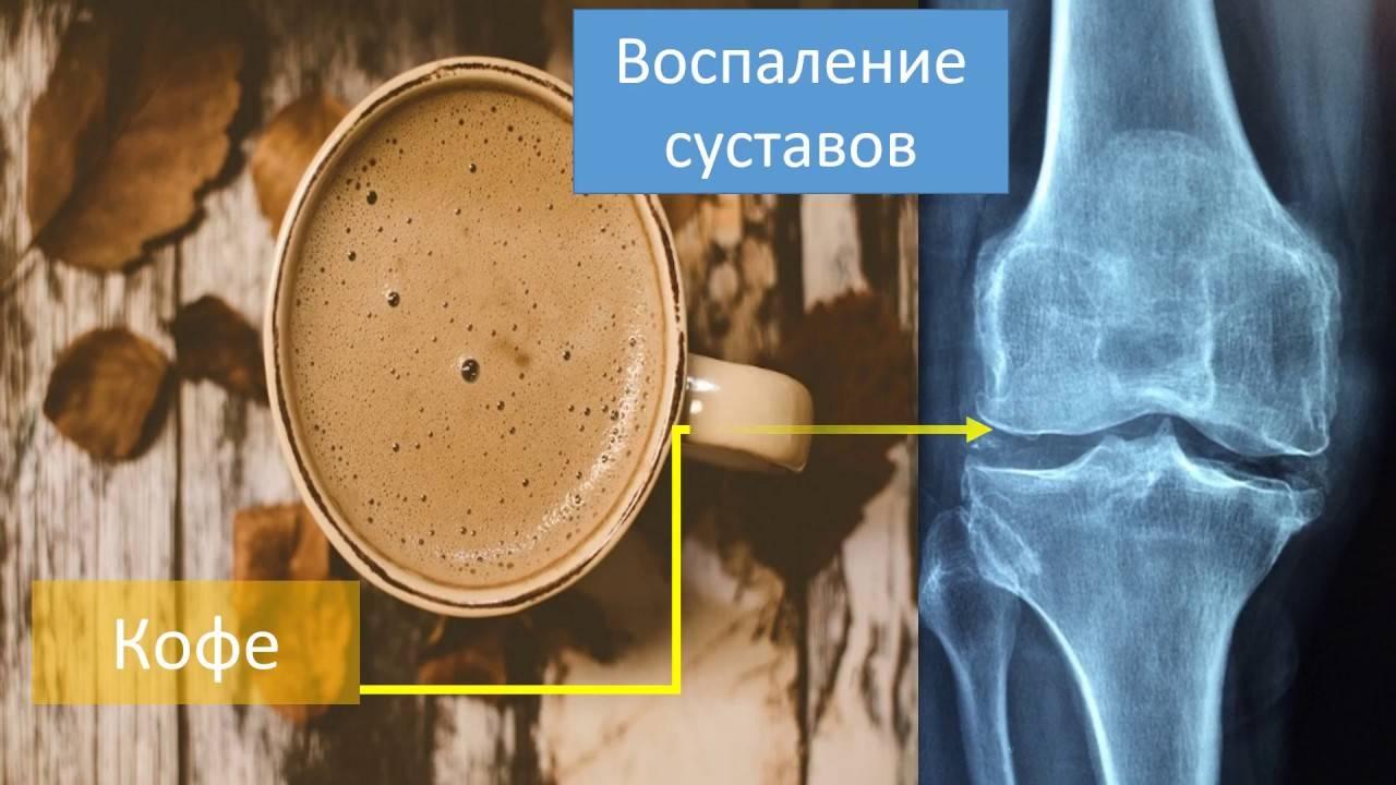 Кофе и артрит: за и против