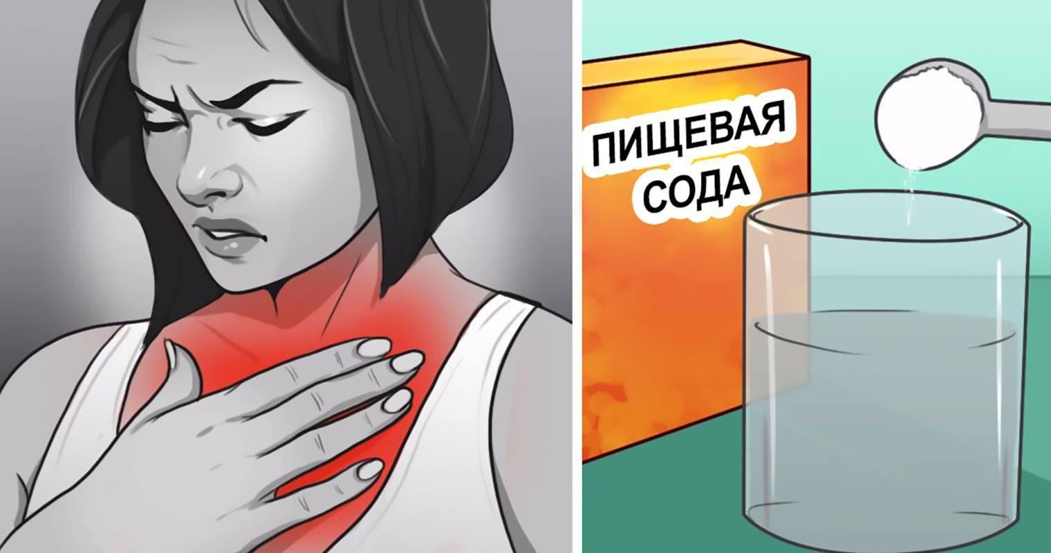 Изжога от кофе - причины и методы устранения изжоги