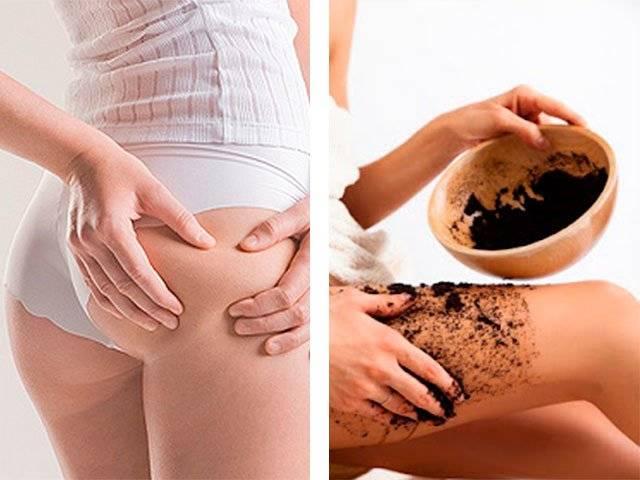 Кофейный скраб от целлюлита и растяжек  в домашних условиях