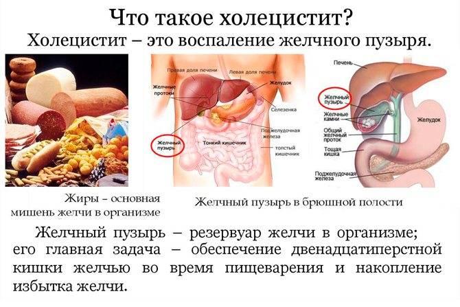 Что позволено кушать при холецистите?