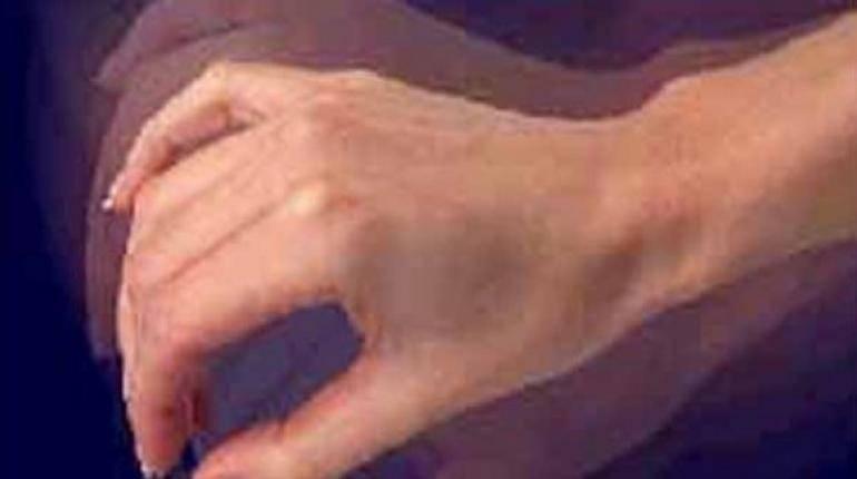 Тремор при всд - трясутся руки, судороги: причины и лечение