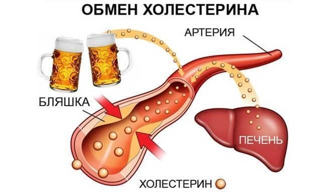Насколько полезны разные виды кофе людям с повышенным холестерином