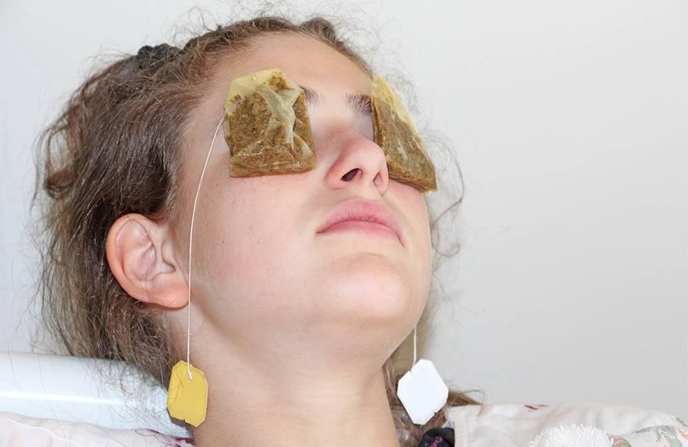 Можно ли промывать глаза ромашкой при конъюнктивите ребенку и взрослому