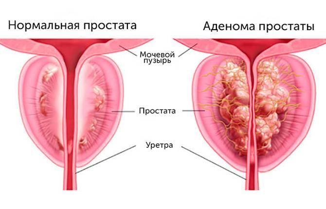 Диета при простатите и аденоме простаты у мужчин: что можно и нельзя есть, примерное меню