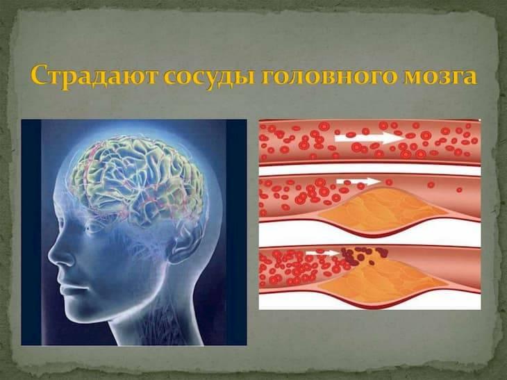 Кофе расширяет или сужает сосуды головного мозга