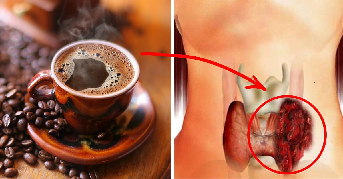 Можно ли пить кофе при заболеваниях жкт?