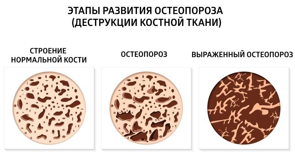 Как кофе влияет на суставы - вредно ли пить кофе... - zdorsustav.ru