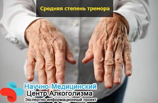 Причины и методы лечения тремора рук