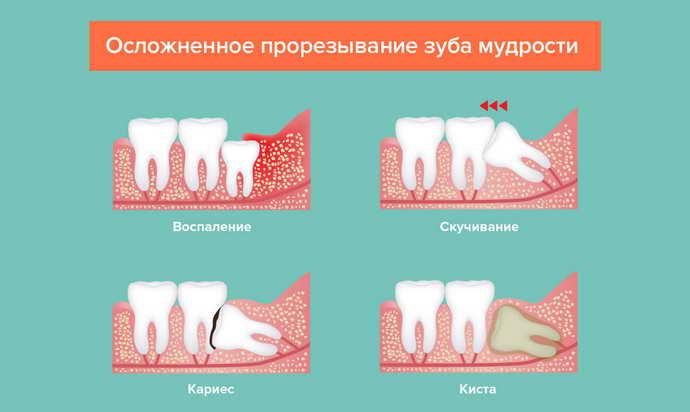Что и когда рекомендуется есть после удаления зуба: время приёма пищи и что можно пить после удаления зубов
