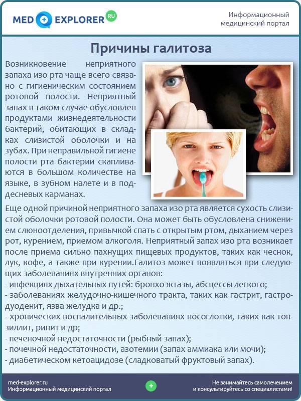 Сухость во рту по утрам: причины и лечение, симптомом каких болезней является