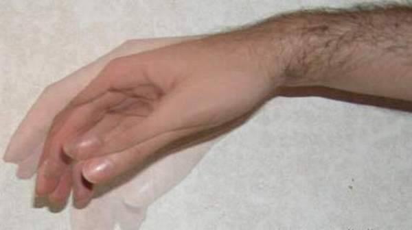 Причины и лечение дрожи головы и в руках   компетентно о здоровье на ilive