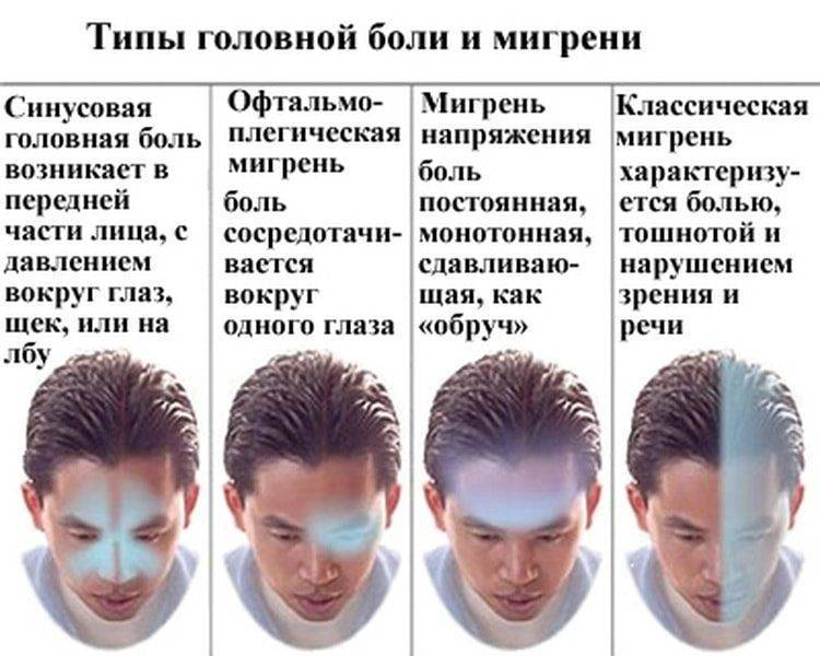 Почему кофе помогает от головной боли: научное объяснение