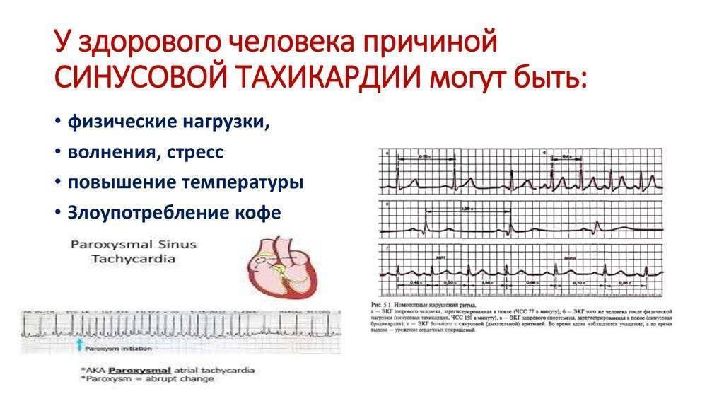 Что можно, а что нельзя при тахикардии? мнение кардиологов
