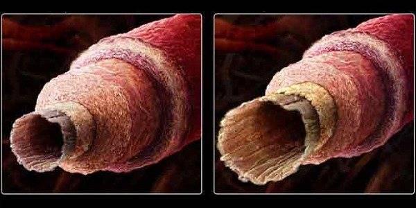 Склерозирование внутреннего геморроидального узла
