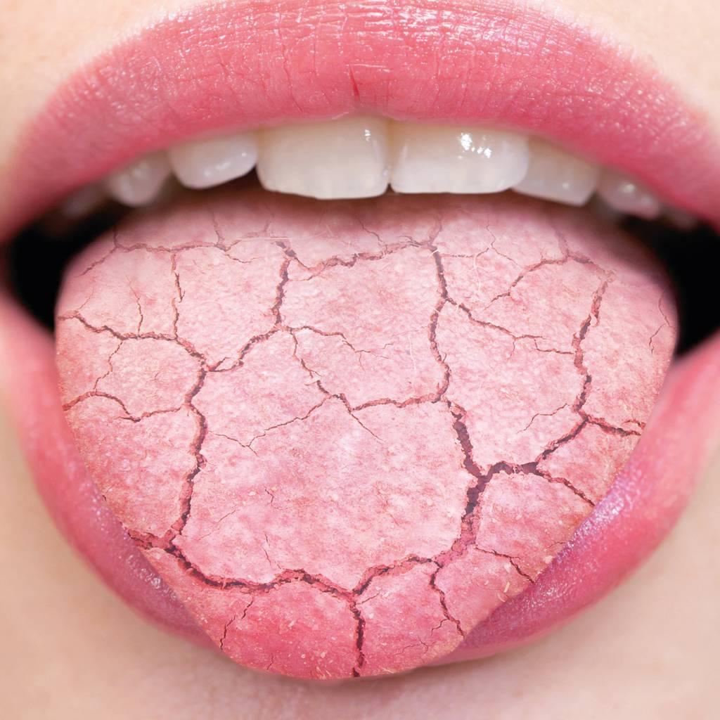 8 причин сухости во рту и 9 способов их устранить - лайфхакер